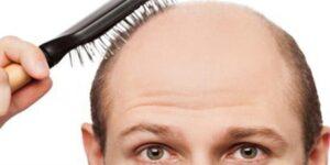 Saç dökülmesine karşı doğal yöntemler