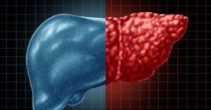 Karaciğer yağlanması neden olur, doğal ve bitkisel tedavi ile nasıl geçer? Karaciğer yağlanması belirtileri ve tedavisi
