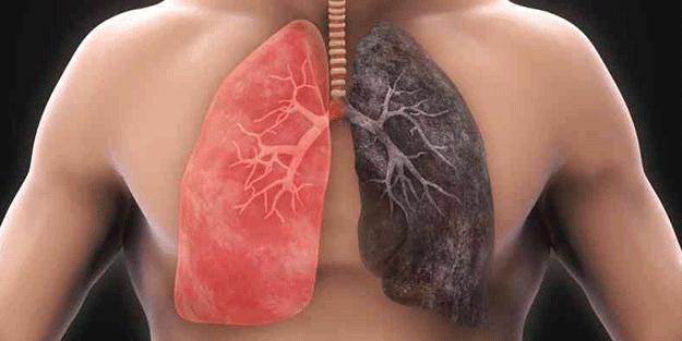 Akciğeri pırıl pırıl yapıyor! İşte o 6 besin